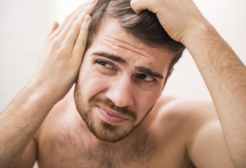 La caída de cabello afecta a hombres y mujeres (Istock)