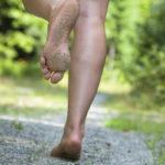5 consecuencias más típicas de correr descalzo