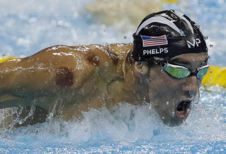 Phelps y sus ya famosos moratones (Gtres)