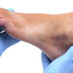 6 causas y remedios para los pies hinchados