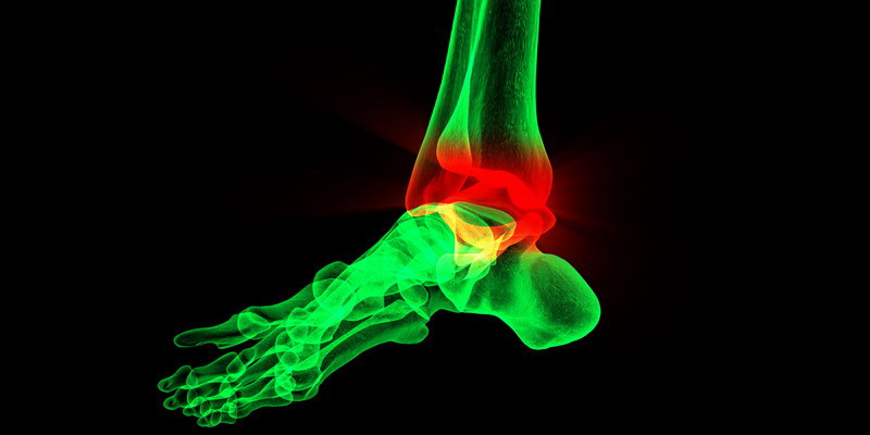Dolor interno de tobillo secundario a hiperpronación (iStock)