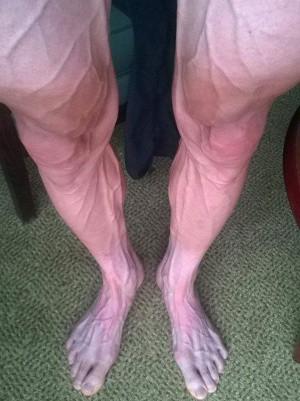 Las piernas de Bartosz Huzarski tras dos semanas de Tour (Instagram)
