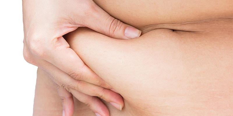 La grasa blanda es más común en las mujeres (iStock)