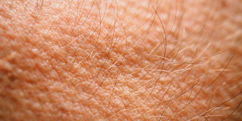 Los músculos que provocan la piel de gallina son una de las partes del cuerpo que ya no necesitamos (iStock)