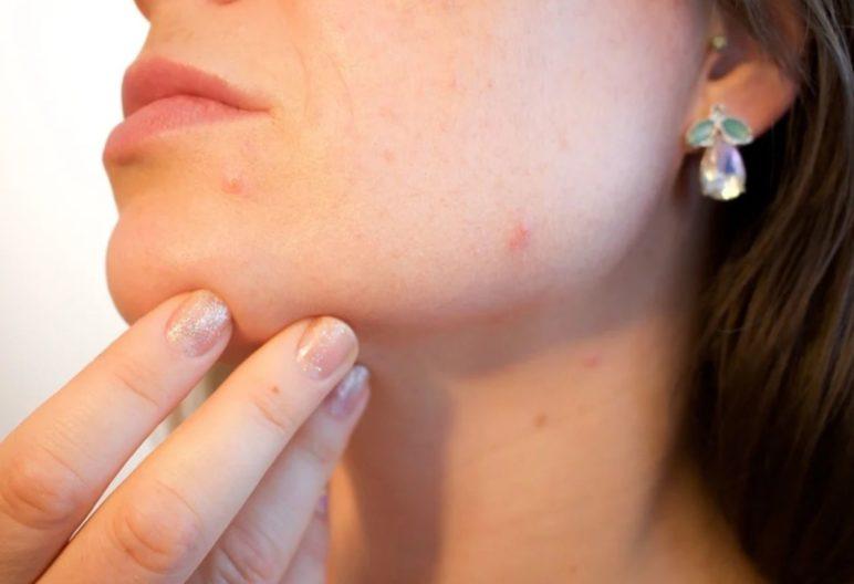 Problemas de acné en la piel (Pixabay)